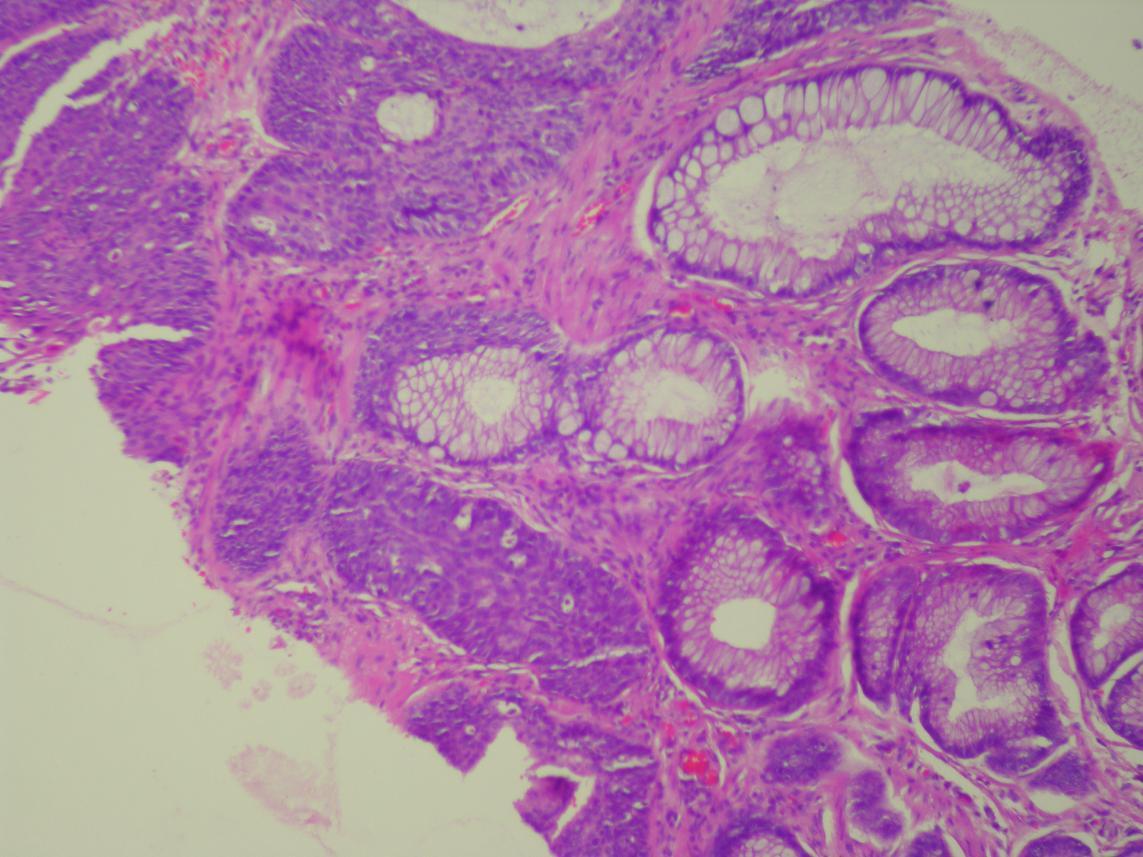 Vaginal adenoma 61