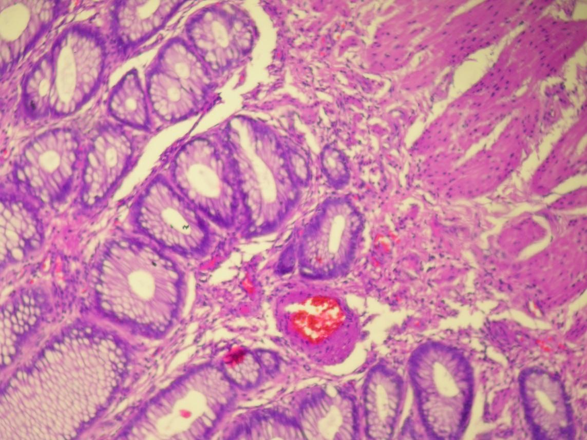 Vaginal adenoma 87