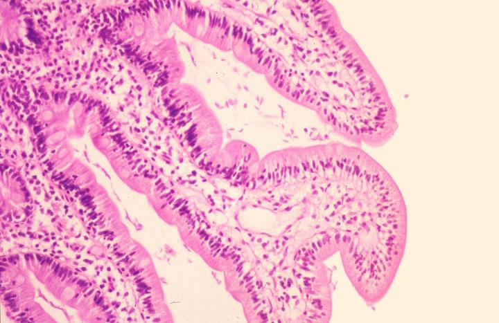 giardia histology stain)