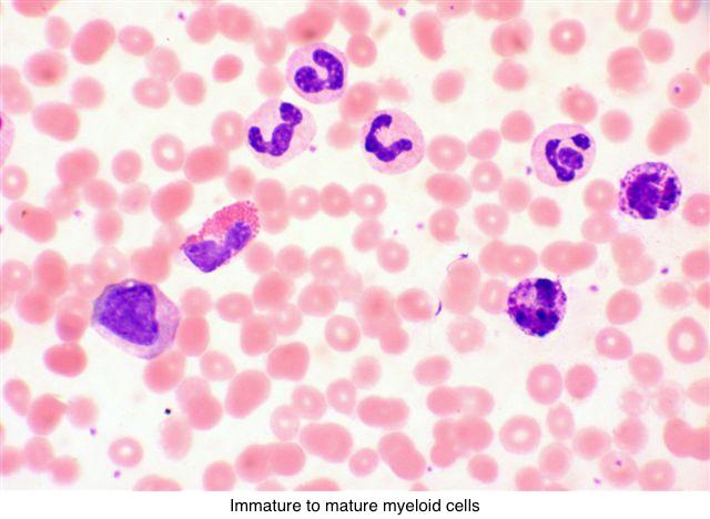 Pathology Outlines - Chronic myeloid leukemia (CML)
