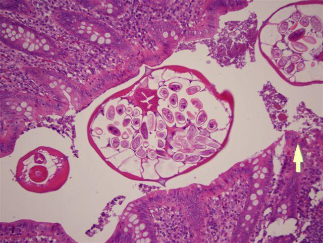 enterobius vermicularis appendix)