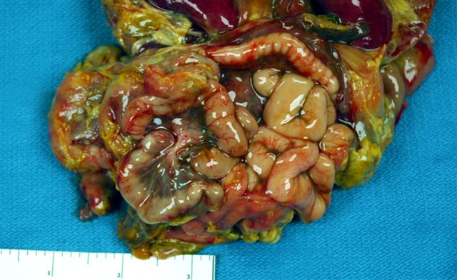Mild duodenitis with patchy erythema in the stomach
