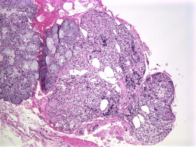 pathology outlines ectopic parathyroid tissue