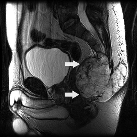MRI with sacral mass