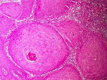 Skin Tumor Nonmelanocytic Keratinous Cyst