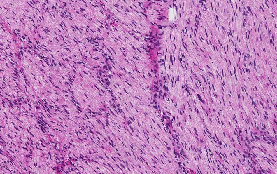... traumatic neuroma arising near the bile duct case b traumatic neuroma