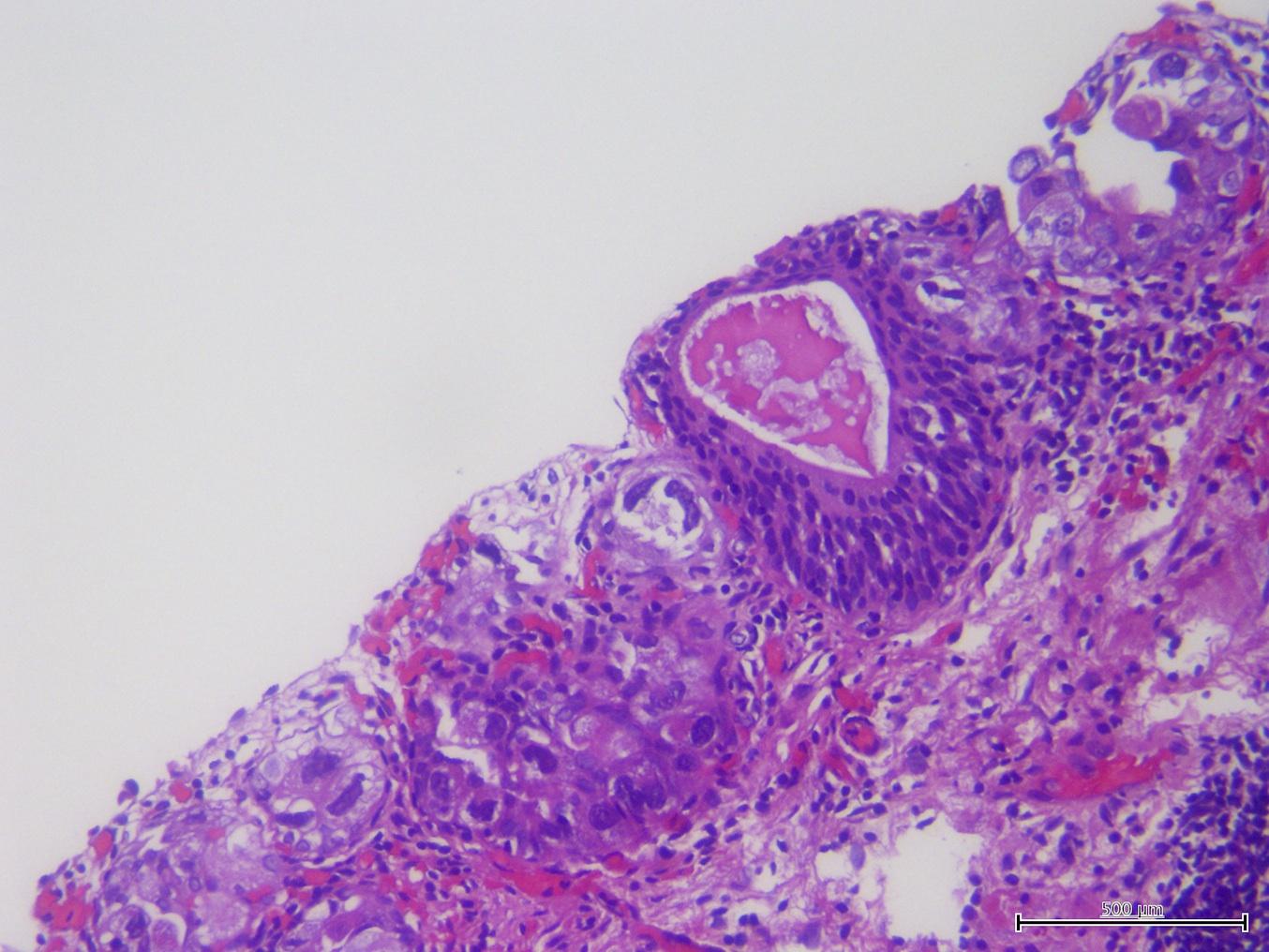 urothelial carcinoma prostate pathology outlines
