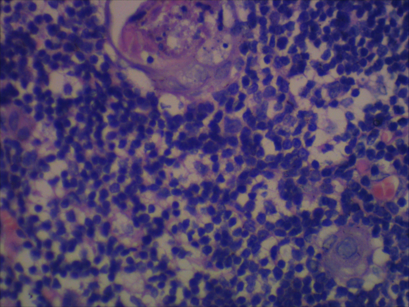 Search results for Epidermoid Cyst Pathology Outlines