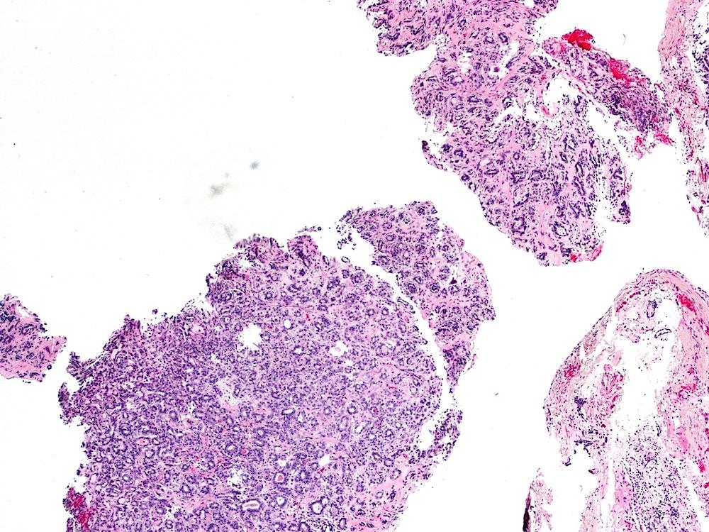 Lung biopsy
