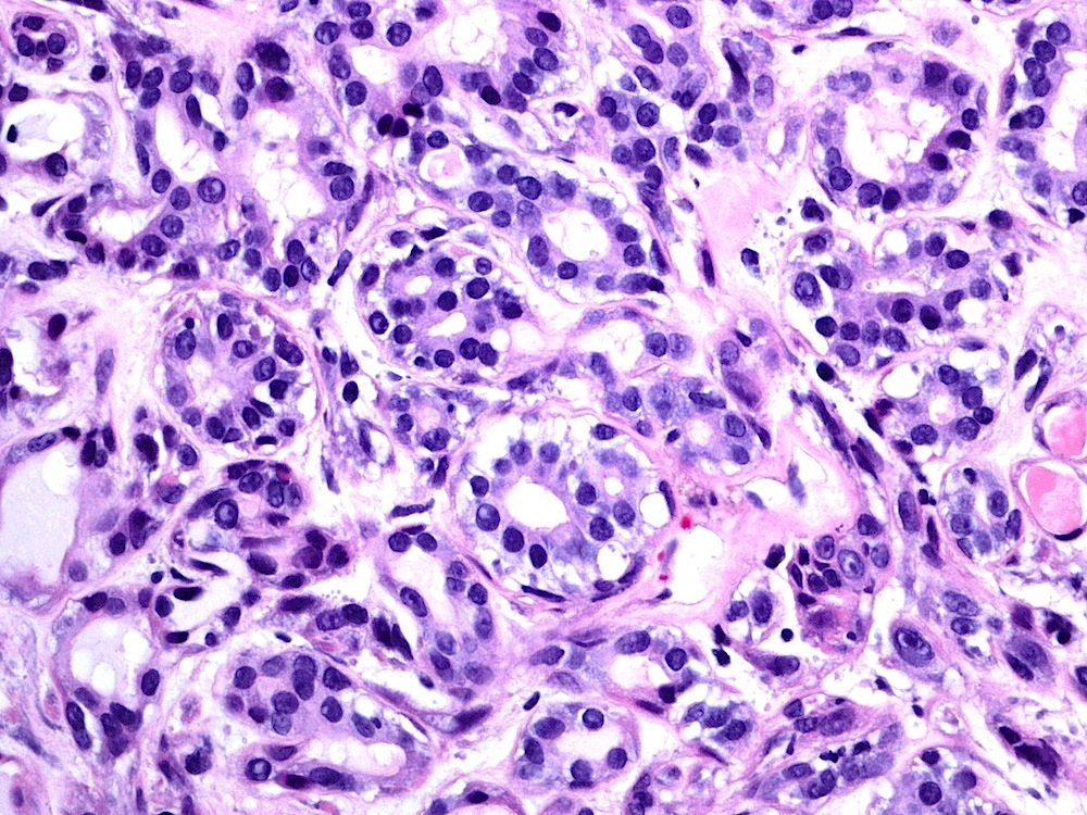 Pathology Outlines - Epithelial myoepithelial carcinoma