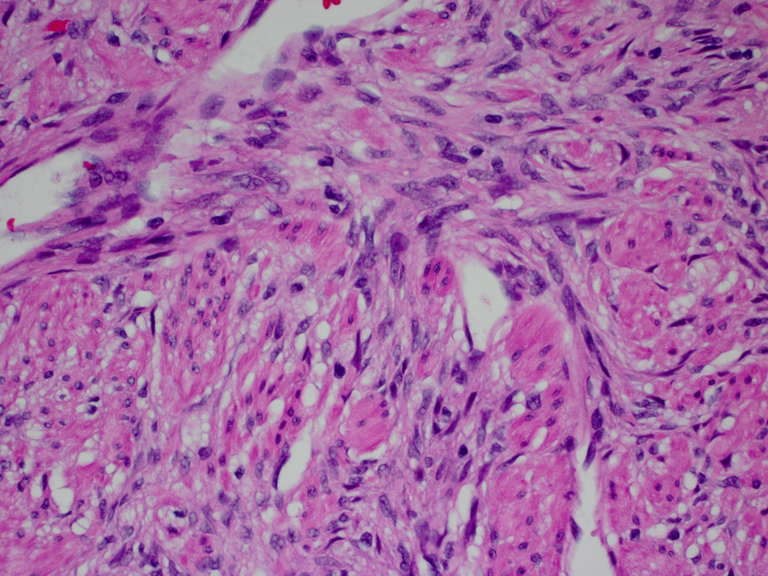 Pathology Outlines Gastrointestinal Stromal Tumor