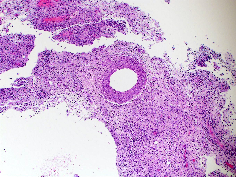 Lipid vacuoles
