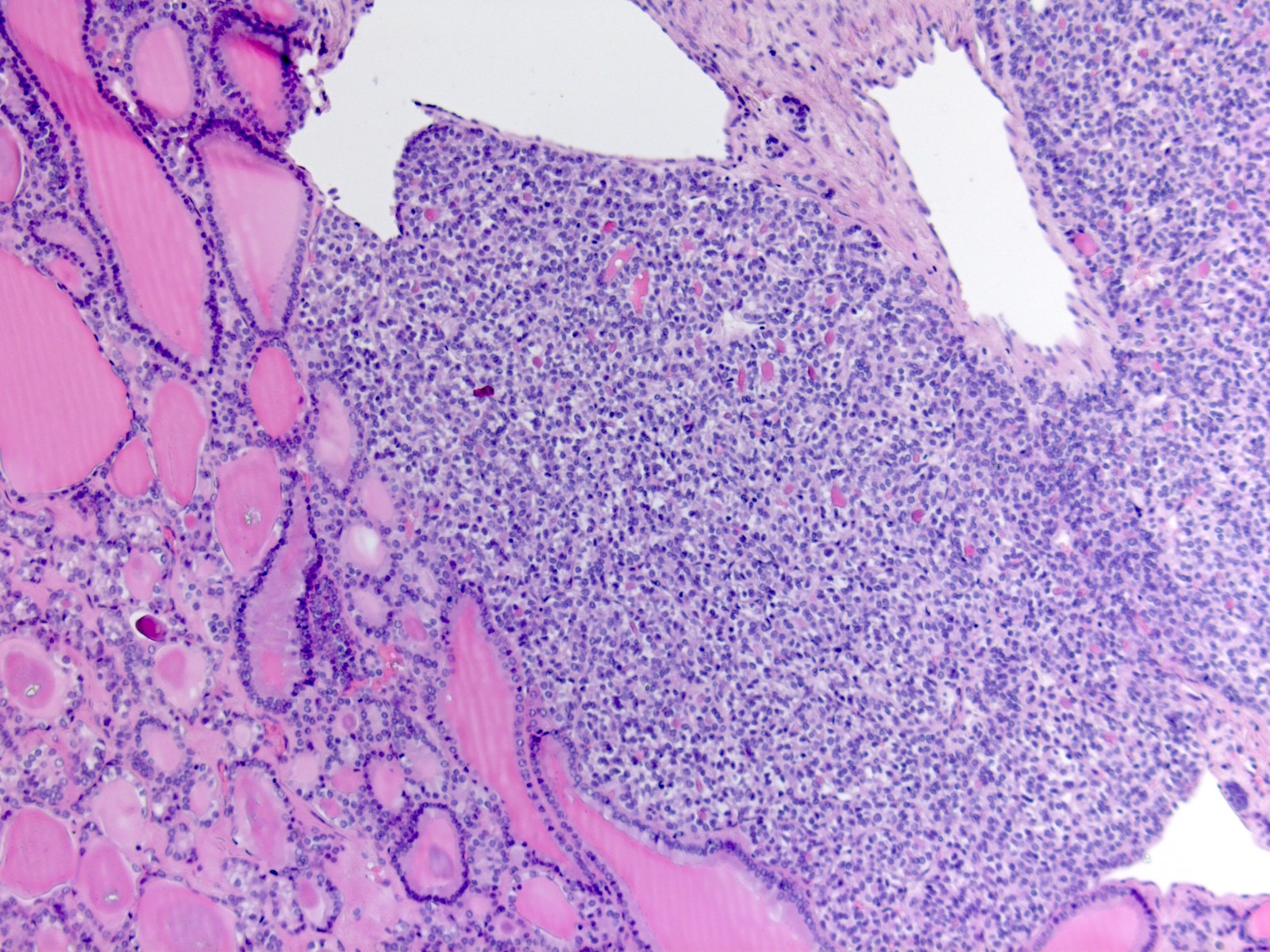 Pathology Outlines Papillary Carcinoma General