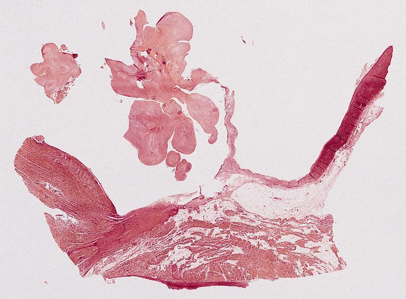 Arising from aortic valve cusp