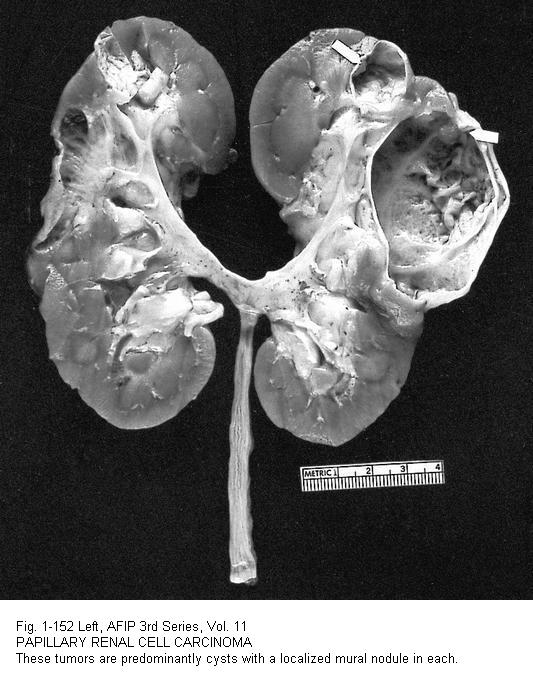 Pathology outlines papillary type renal cell carcinoma for Cystic lesion with mural nodule