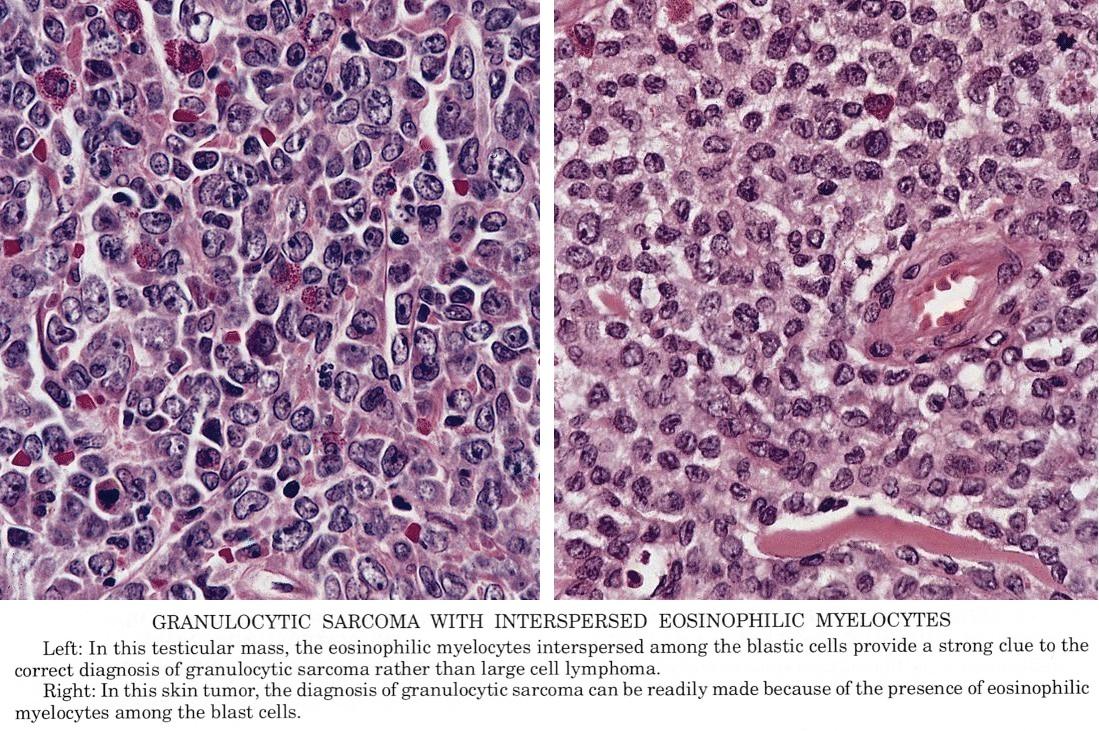 Pathology Outlines - Acute myeloid leukemia / granulocytic