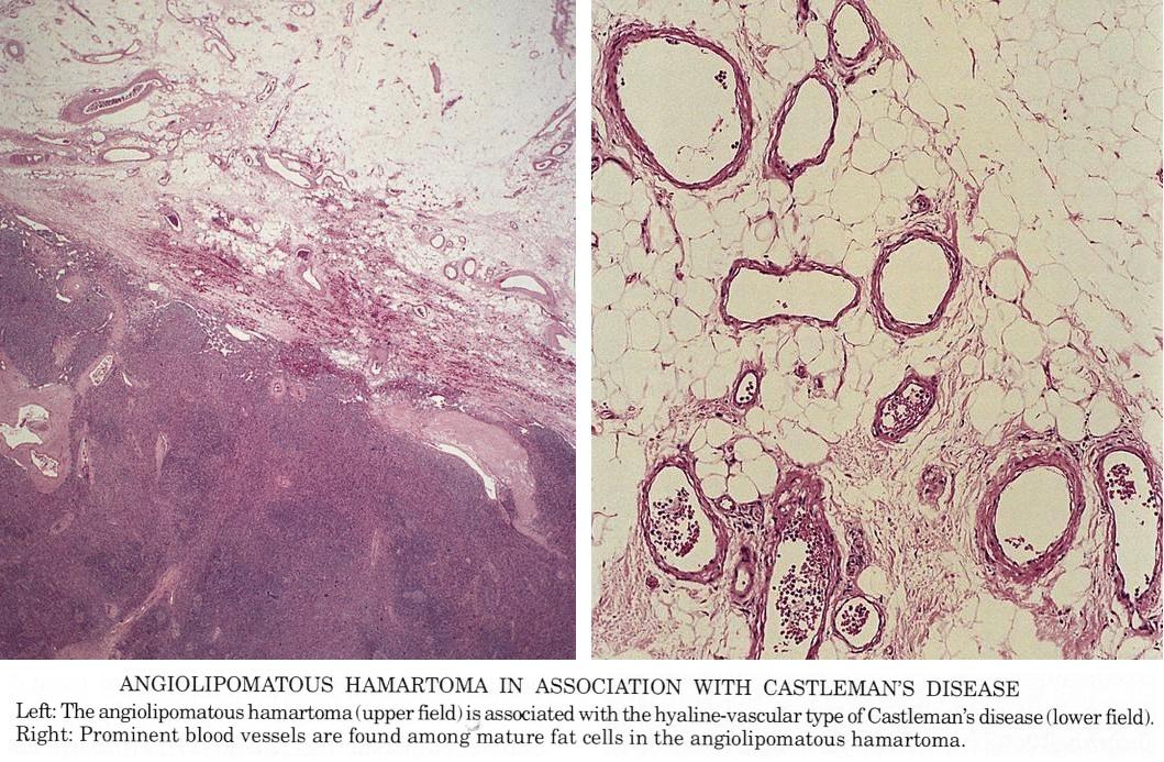 Pathology Outlines Castleman Disease