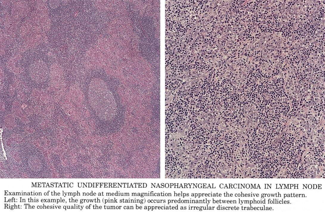 Aggressive cancer lymph nodes, Aggressive cancer in lymph nodes
