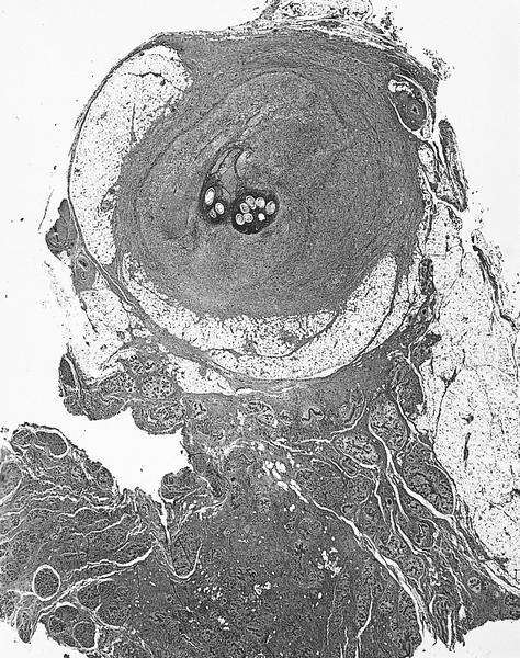 Gravid female worm of<br><i>Wucheria bancrofti</i><br>surrounded by fibrosis