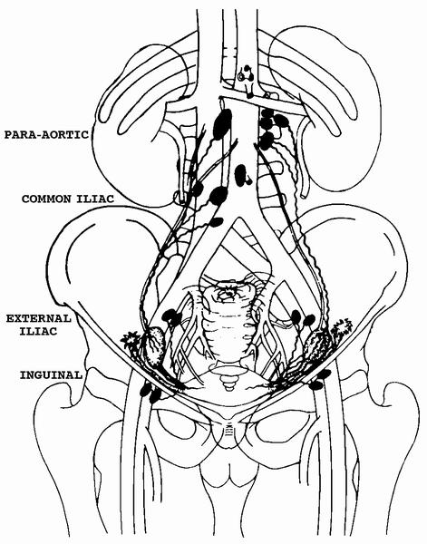 Paratracheal Lymph Node Diagram