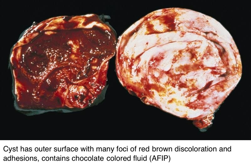 Cyst contains chocolate colored fluid