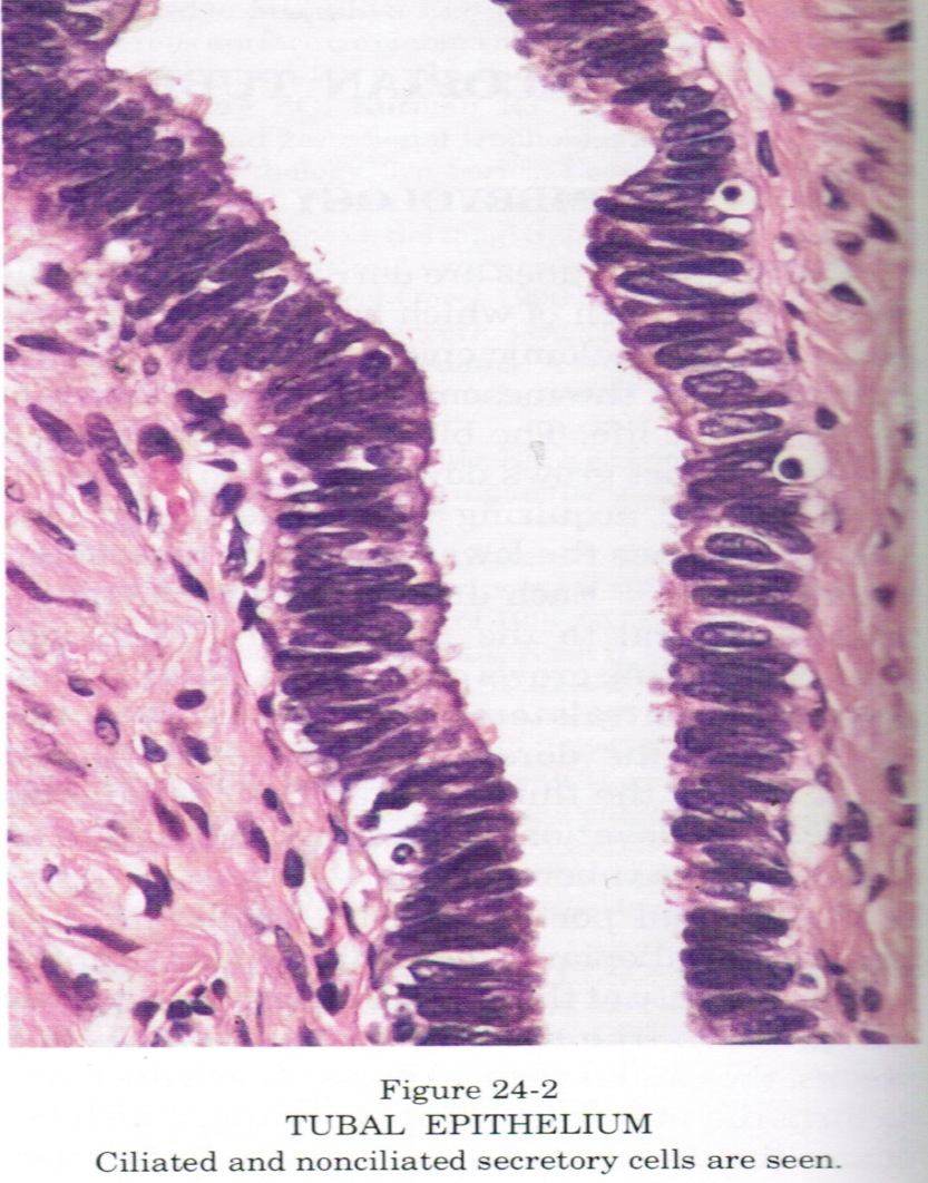 Pathology Outlines Normal Anatomy Histology Simple Plant Cell Diagram Labeled For Kids Tubal Epithelium