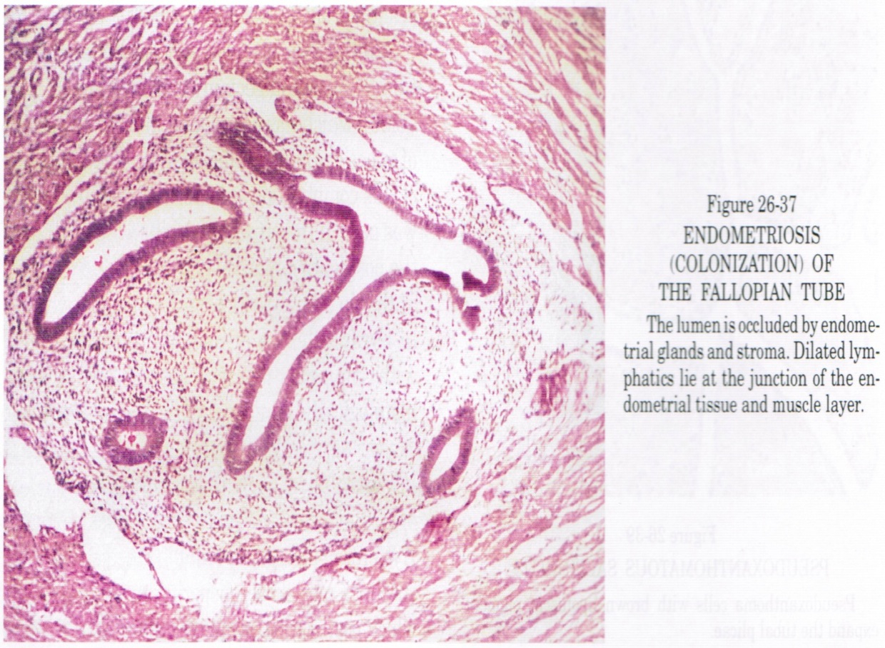 Pathology Outlines Endometriosis