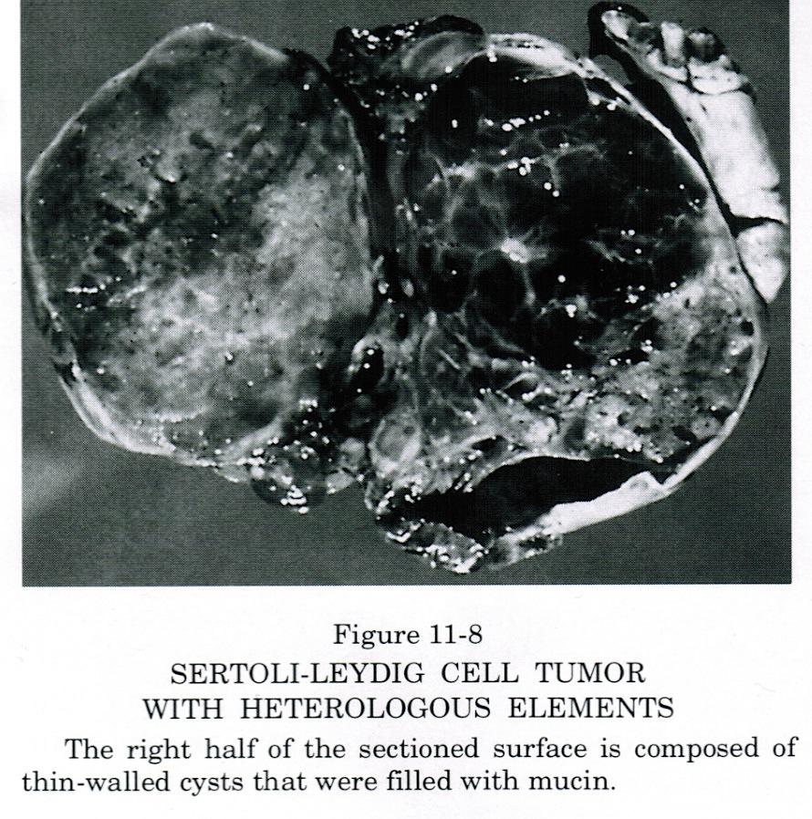 darmoperatie tumor