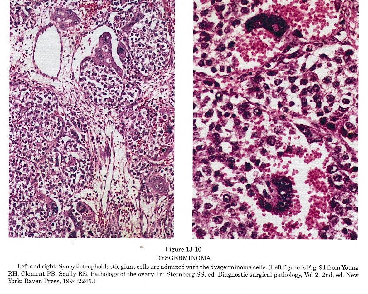 Pathology Outlines Dysgerminoma