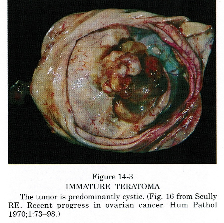 Consider, that Teratoma ovarian cyst
