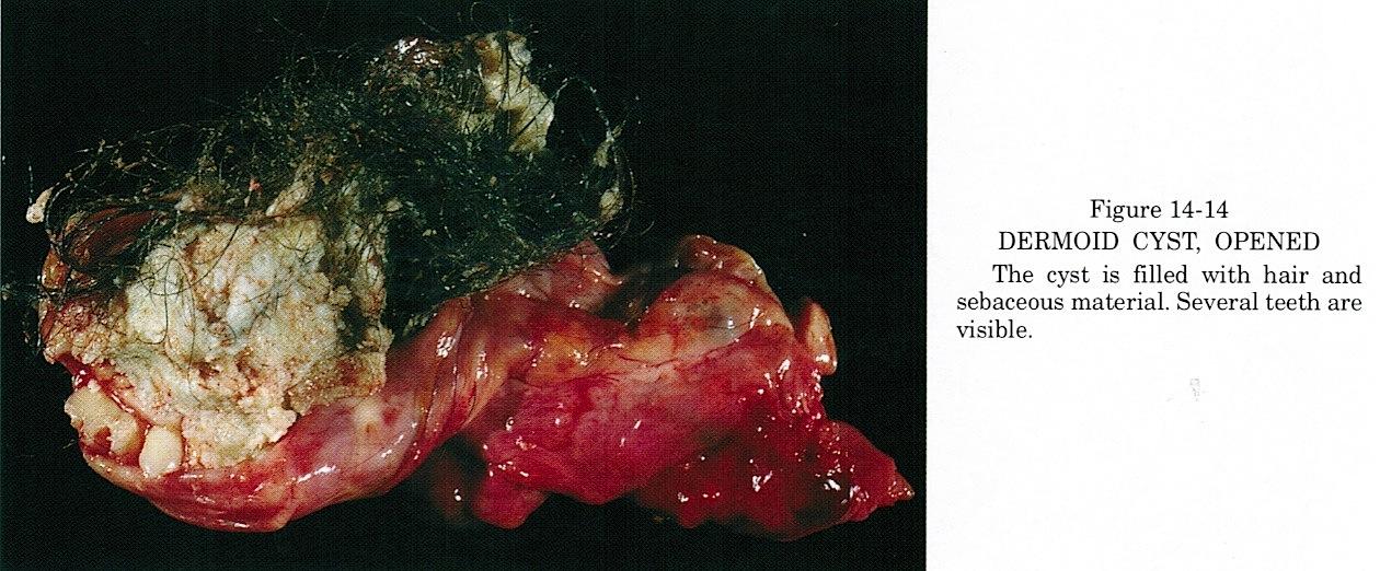 Pics For > Ovarian Cyst Hair