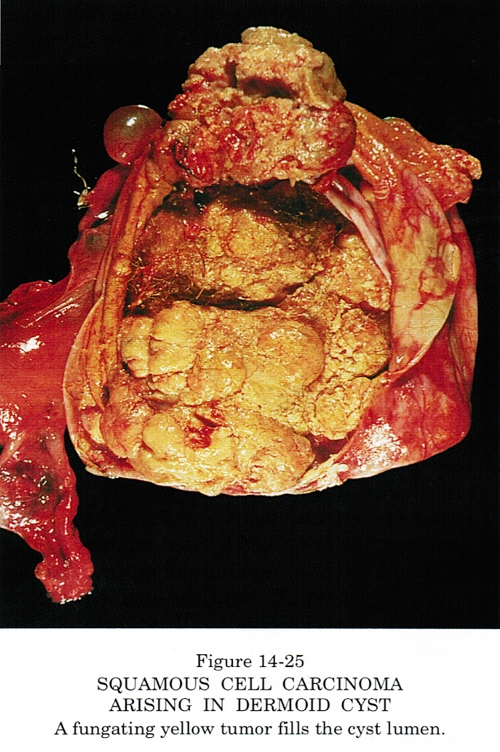 Pathology Outlines - Teratoma-mature