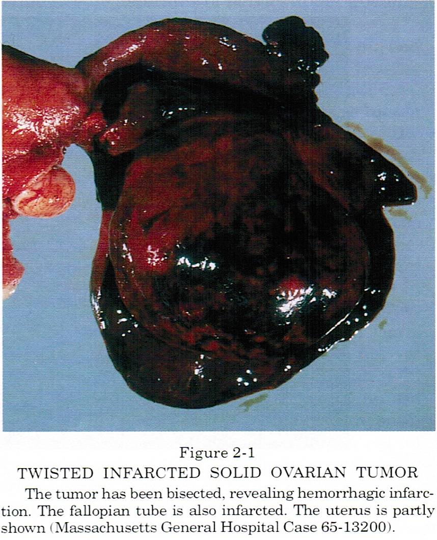 Pathology Outlines - Ovarian Tumors