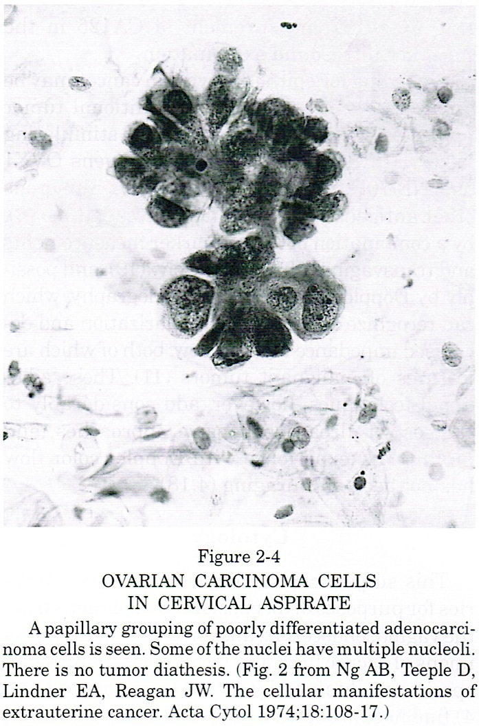 Ovarian carcinoma cells in cervical aspirate