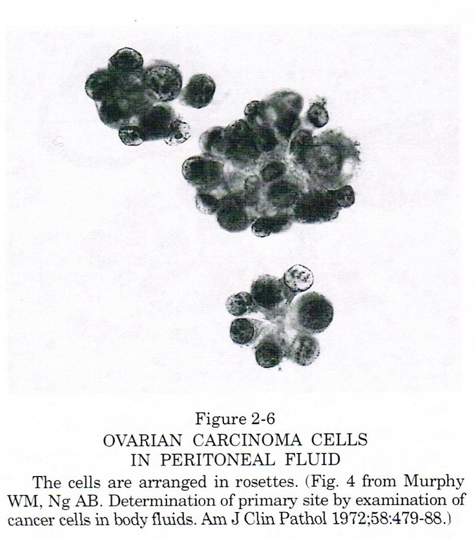Mesothelial Cells in Peritoneal Fluid