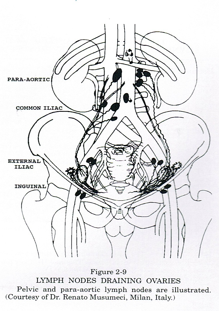 Pathology outlines ovarian tumors general lymph nodes draining ovaries ccuart Gallery