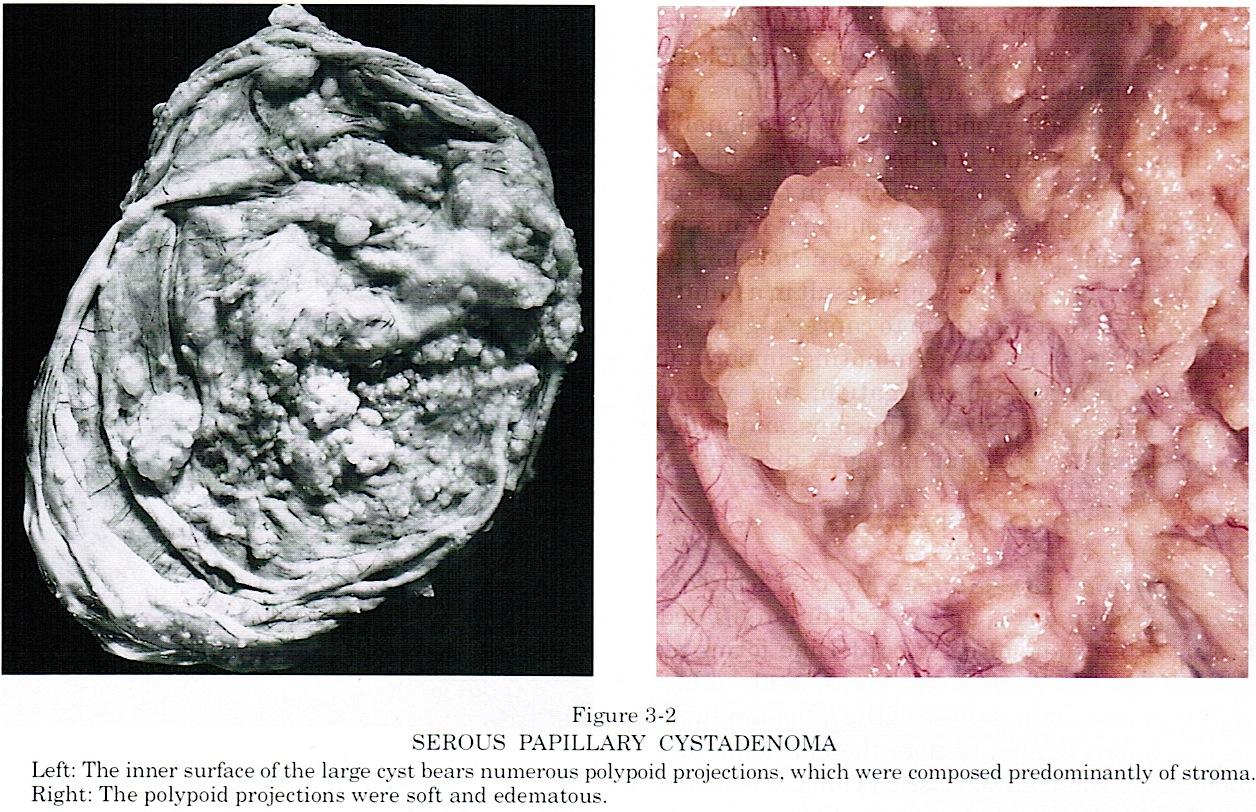 papilloma ovary)