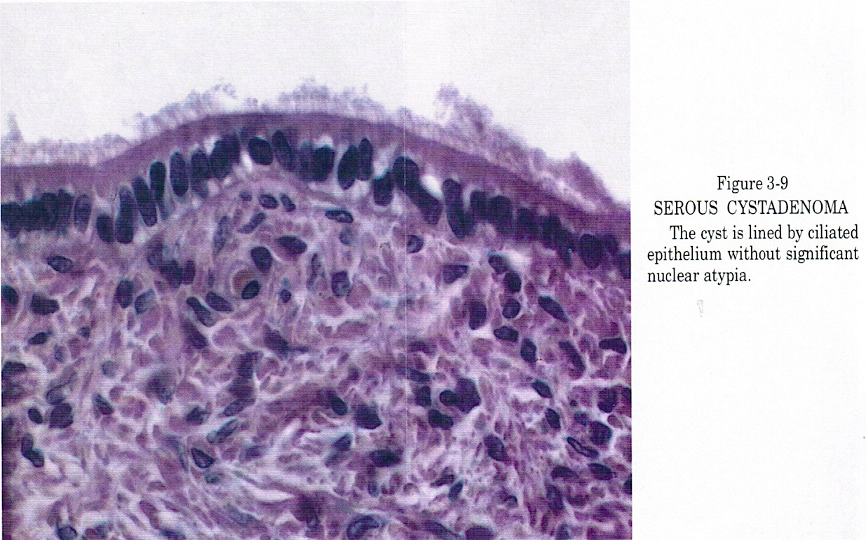 Will hpv cause ovarian cancer. Pin on tratamente, remedii, retete - Hpv cause ovarian cancer