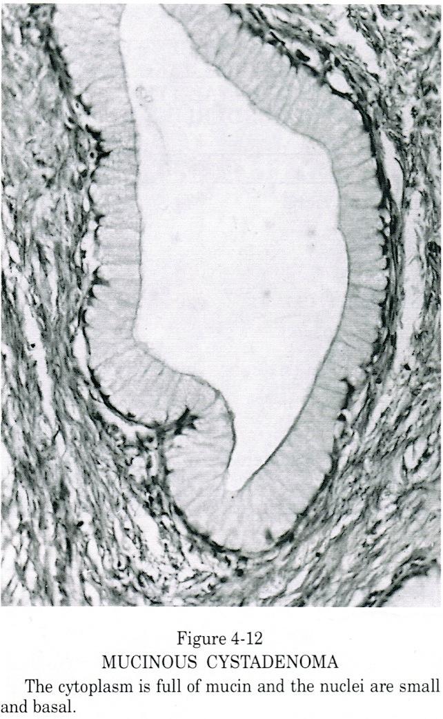 Pathology Outlines Mucinous Cystadenoma Adenofibroma