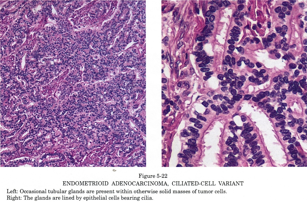 Pathology Outlines Endometrioid Carcinoma