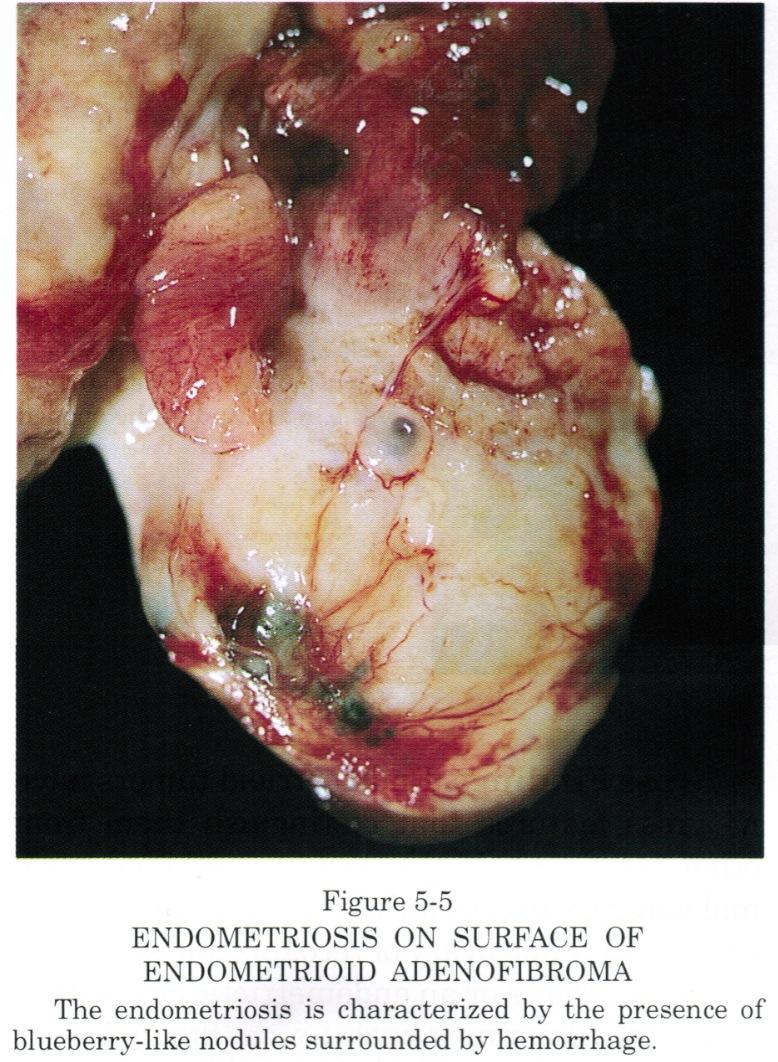 pathology outlines endometrioid adenofibroma