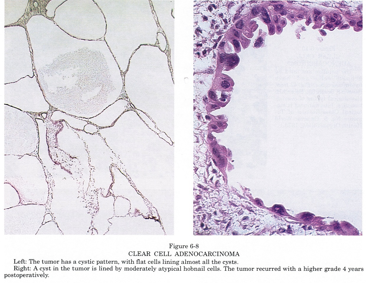 Pathology Outlines Clear Cell Carcinoma