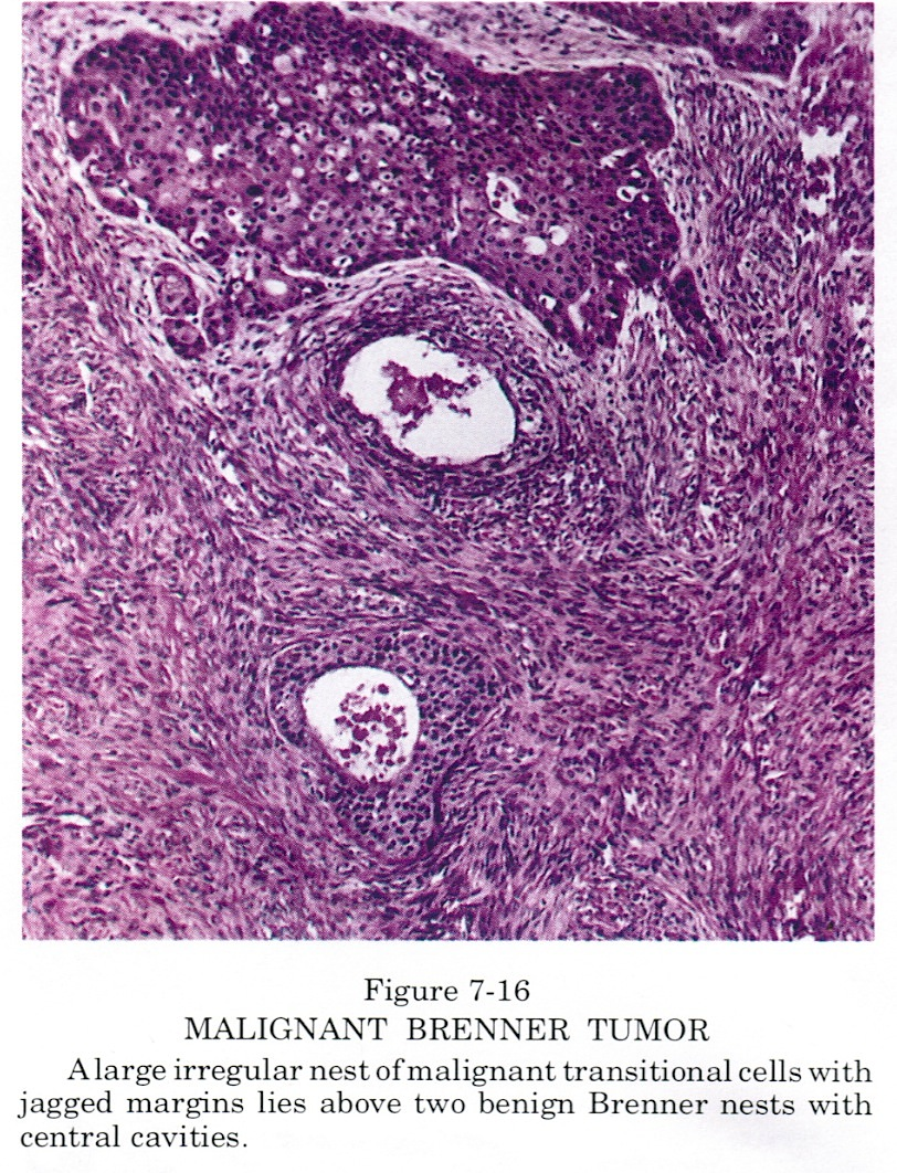 pathology outlines malignant brenner tumor