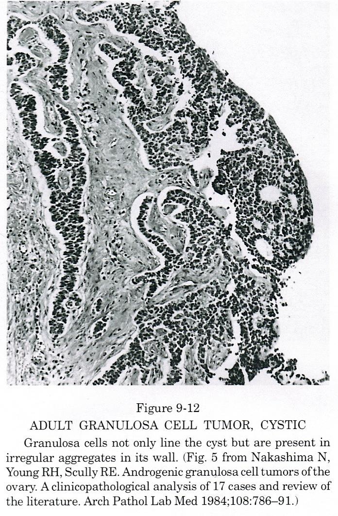 Cystic tumor