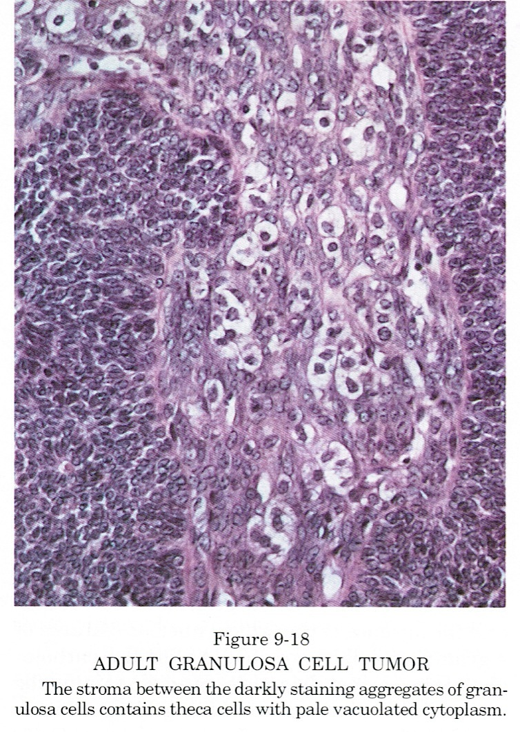 Theca cells