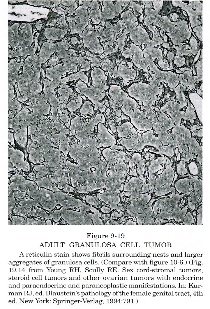 Pathology Outlines - Granulosa cell tumor - adult