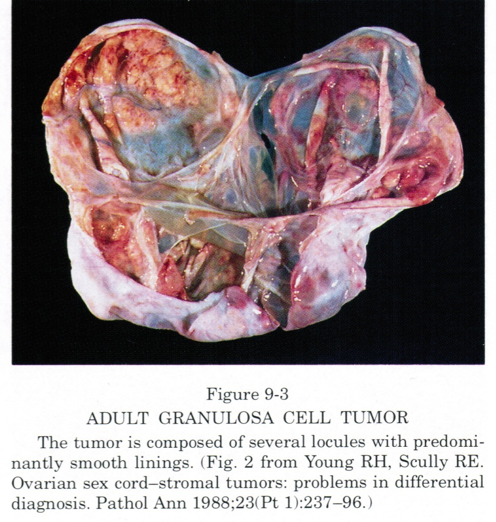 Pathology Outlines Granulosa Cell Tumor Adult