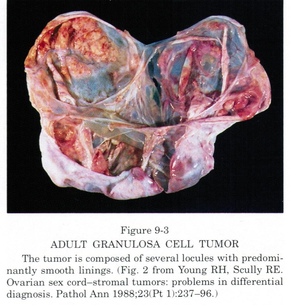 Predominantly cystic mass