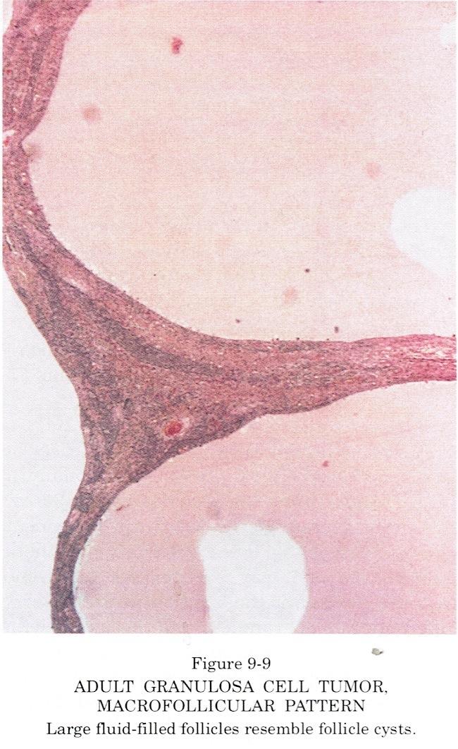 Microfollicular pattern