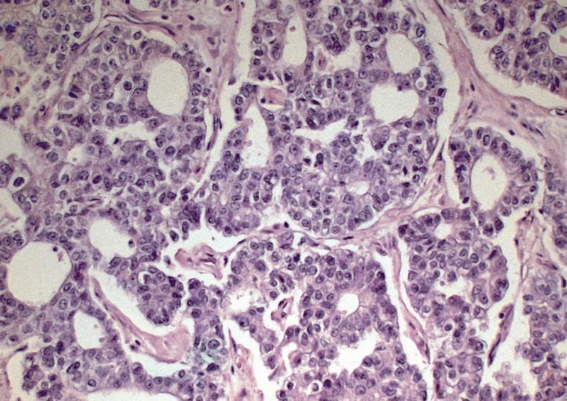 Pathology Outlines Acinar Cell Carcinoma
